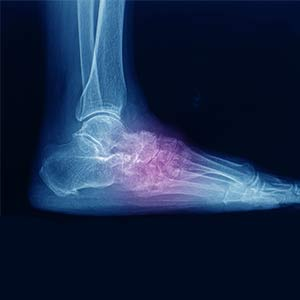 worldcrutches-The-Diagnosis-Of-A-Lisfranc-Foot-Injury